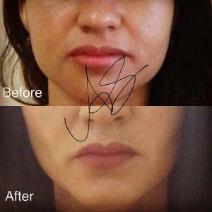 Bichectomia Padova Prima e Dopo