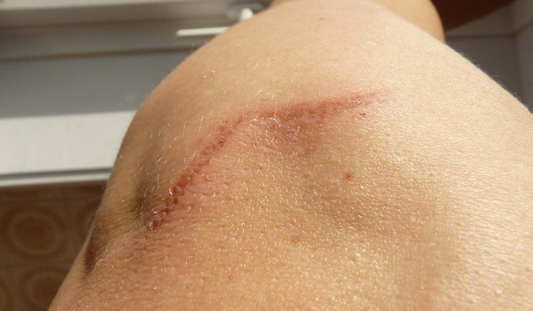 Come eliminare cicatrici