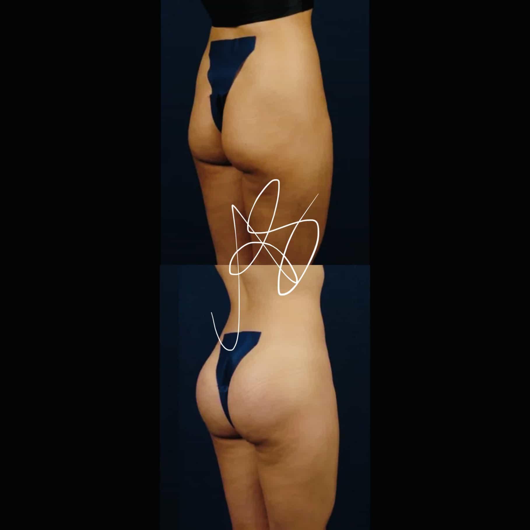Pro e Contro chirurgia plastica